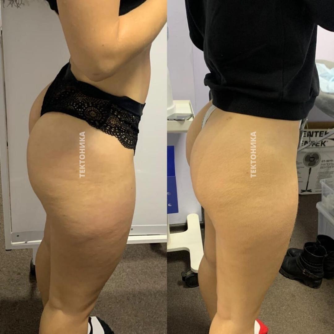 До и после ЛПГ